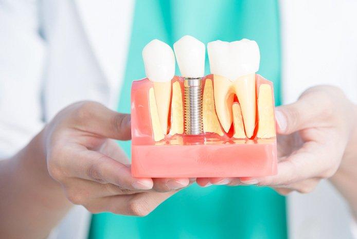 Family Dentist Hamburg MI